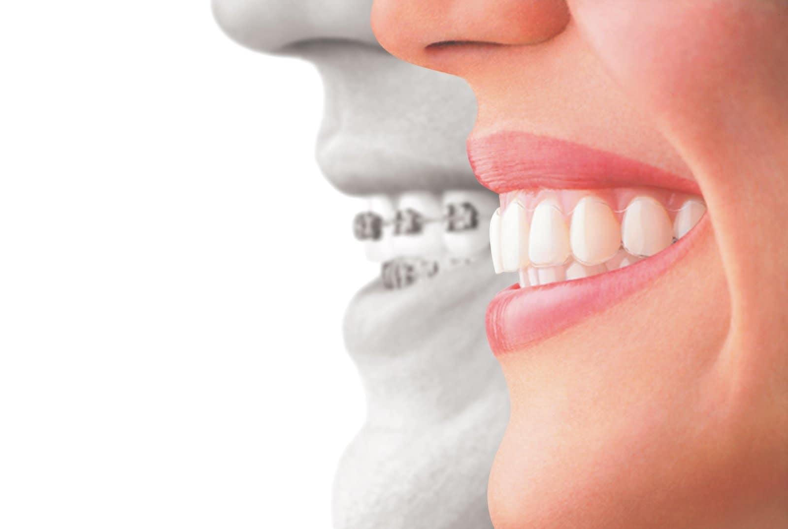 Orthodontics Greenville McKinney Rowlett Sherman Albuquerque